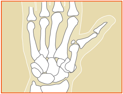 Arthritis Base of the Thumb Dr. Dr. John I. Kung, MD Orthopedic Hand Surgeon Ilinois: Flossmoor, Bourbonnais & Mokena Indiana: Munster